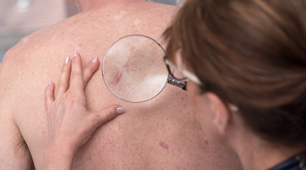 Different Types Of Skin Cancer Due To Sun Exposure Chop